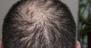 Androgener Haarausfall